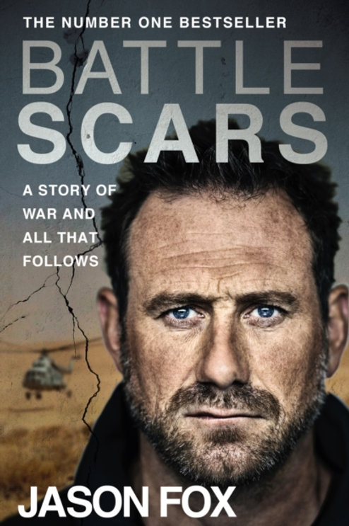 Battle Scars : A Story of War and All That Follows