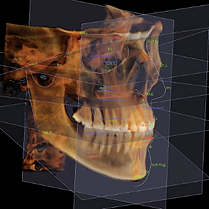 3D-Analysis-Invivo-Resized-1-1.png