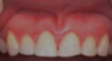 Cosmetic-Crown-Lengthening_After.png