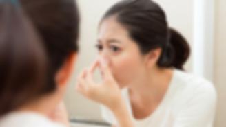 SkinPen, micro needling, acne, acne solutions, facials, peels, fractora, Skin Care, PRP