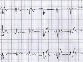 ECG Masterclass for Dorset Medics