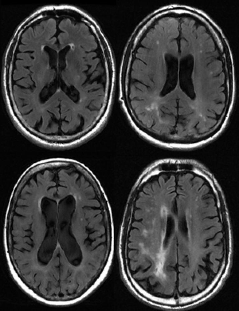 ARIA-eWMH Cognitive Health Risk Analysis