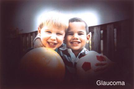 Glaucoma Risk Screening