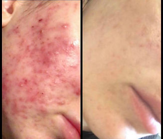 microneedling Acne treatment