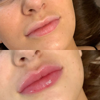 Dermal Fillers Lip Fillers