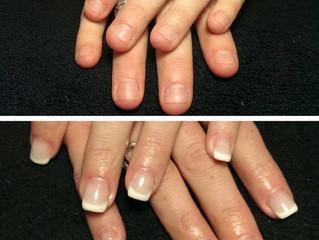 Veckans Hälsotips - Är du en nagelbitare?