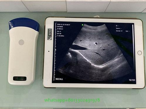 Portable Handheld mini Convex color doppler wireless ultrasound scanner probe