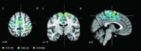 fMRI_for_Ces.jpg