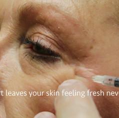 Dysport Facial Injections