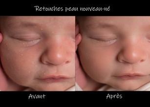 traitement nouveau né.jpg
