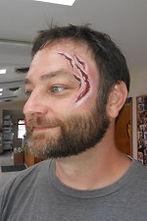 wound 11.jpg
