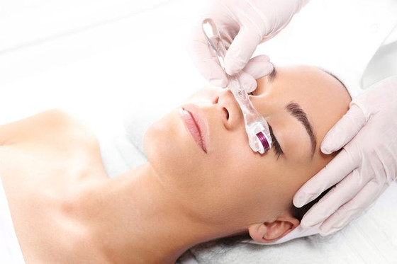 Want to Age More Gracefully? Top 10 Reasons You Should Try Microneedling