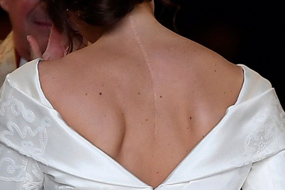 woman in wedding dress facing backwards with scars