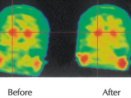 מה קנביס עושה במוח?