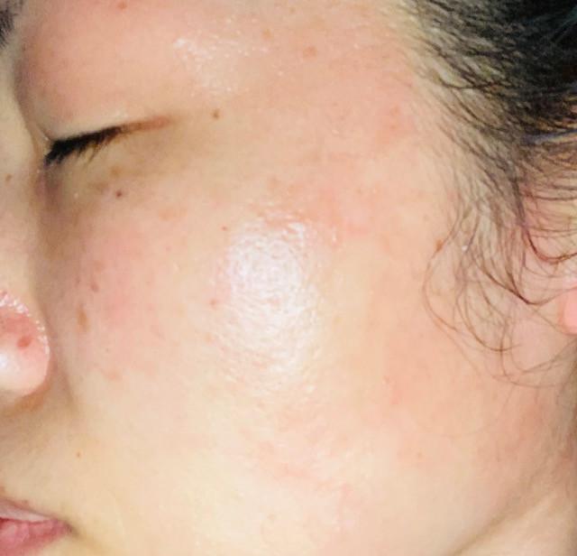 左顔面の帯状疱疹