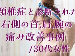 頚椎症と診断された右側の首,肩,腕の痛み改善事例/30代女性(五反田 鍼灸院)