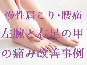 慢性肩こり・腰痛による左腕と右足の甲の痛み改善事例50代女性(五反田 鍼灸院)