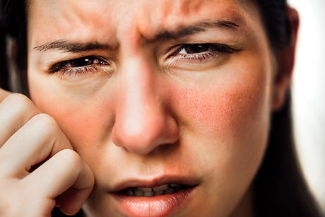 Woman with painful hot sunburn,facial sk