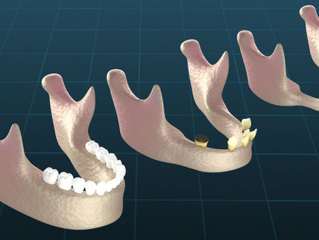 What are the Causes of Bone Loss in the Jaw?