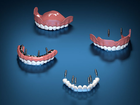 Comparing The Permanent Alternatives to Dentures