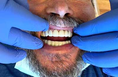 Gums and Papilla with 3 on 6™ Treatment