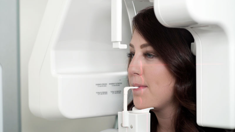 cbct or cone beam scan