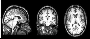 AnatomischeScan_Marcus.jpg