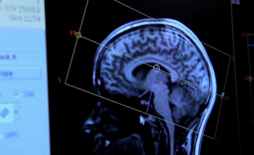 Image_Brain_of_subject_inside_MRIscanner