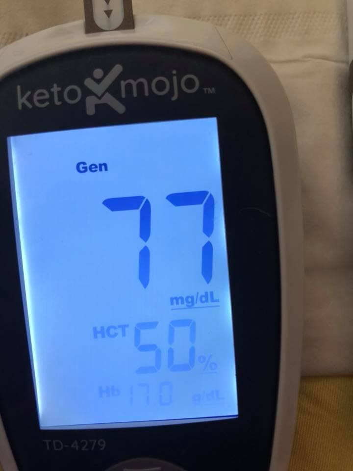 2 june 15 Blood sugar pre-meal (12 pm)