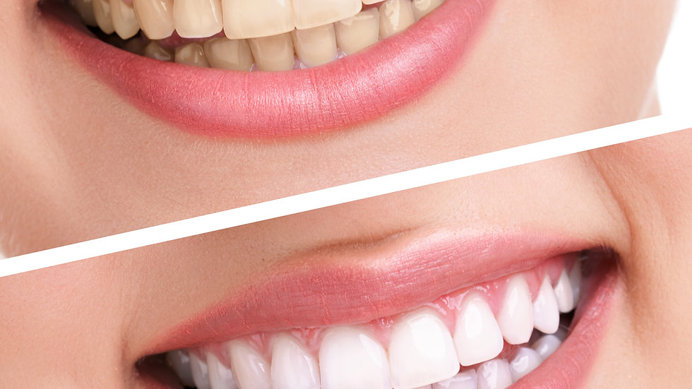 Gift Certificate for one hour session of Teeth Whitening