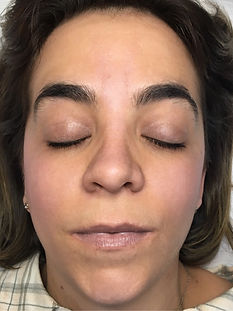 Before Photo of Brow Client