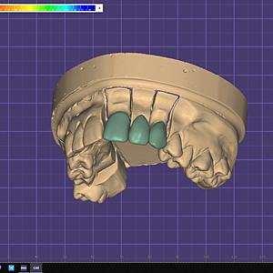 exocad CAD/CAM