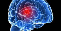 Brain activation Mindfulness