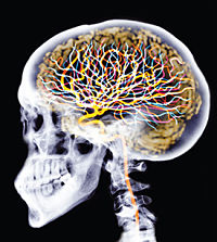 injectable brain implants picturescienti