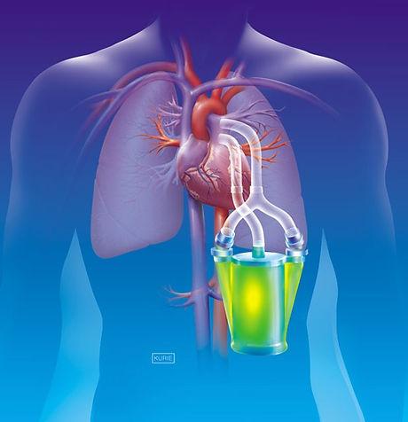 Artificial Organ Image - 2.jpg