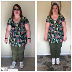 Weight Loss Patient