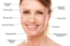 botox pic.jpg