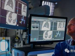 应用肺癌诊断新技术-莫纳克 (Monarch Platform)