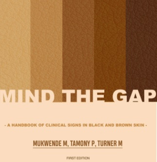 Guide to medical conditions on darker skin (finally) published