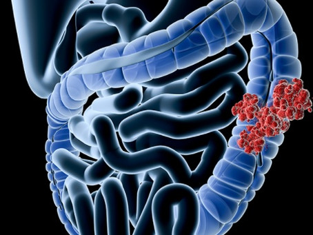 A call to learn more about colon cancer