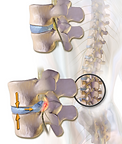 512px-Herniated_Disc.png