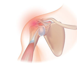 800px-Rotator_cuff_syndrome (1).jpg