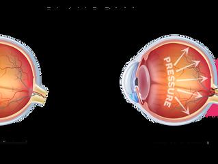 Glaucoma: The Silent Thief