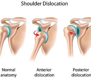 dislocated-shoulder.jpg