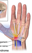 1024px-Carpal_Tunnel_Syndrome.png