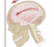512px-Concussion_mechanics.svg.png