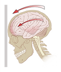 512px-Concussion_mechanics.svg.png