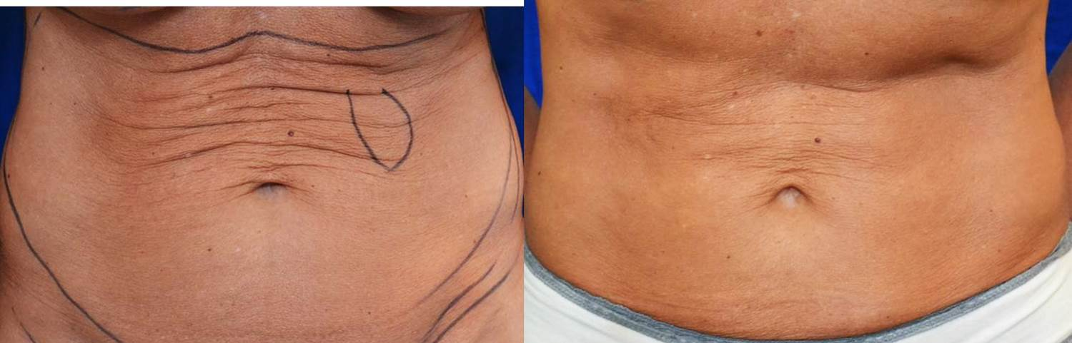 BEFORE AND AFTER ABDOMEN
