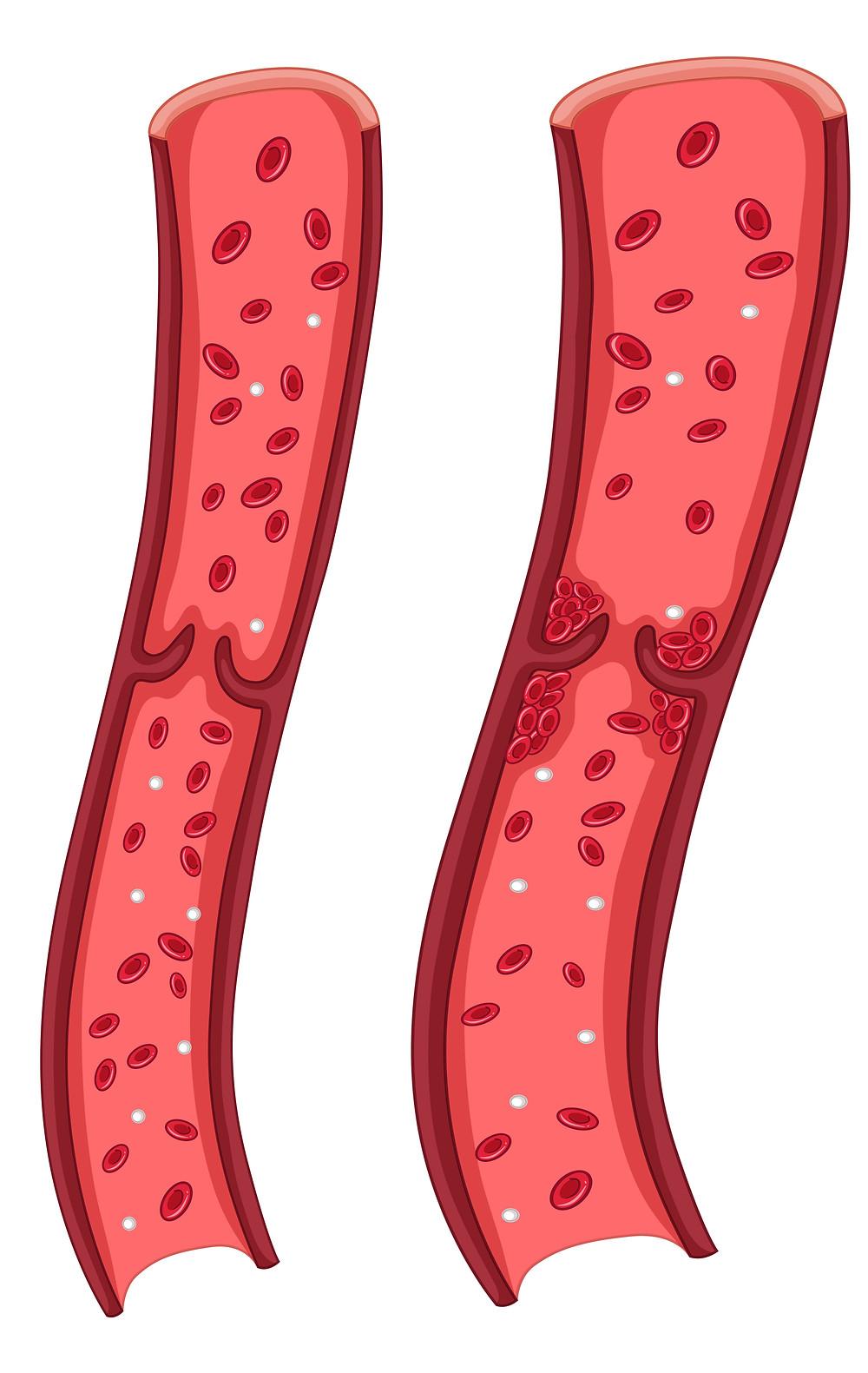 Venas cuando sufres enfermedad venosa crónica o piernas cansadas