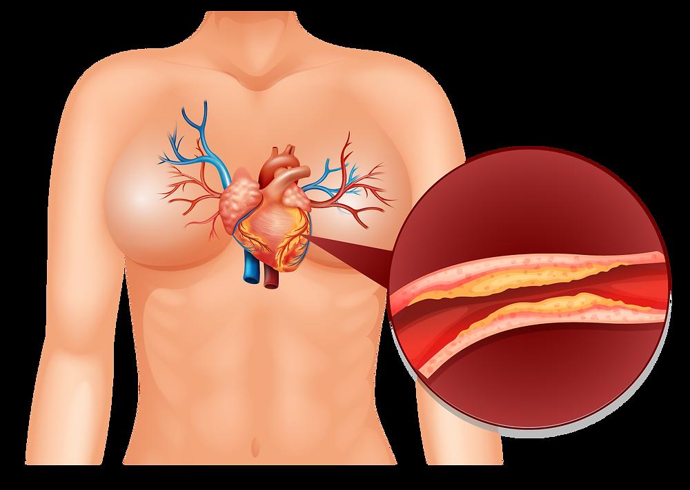 colesterol en el corazón